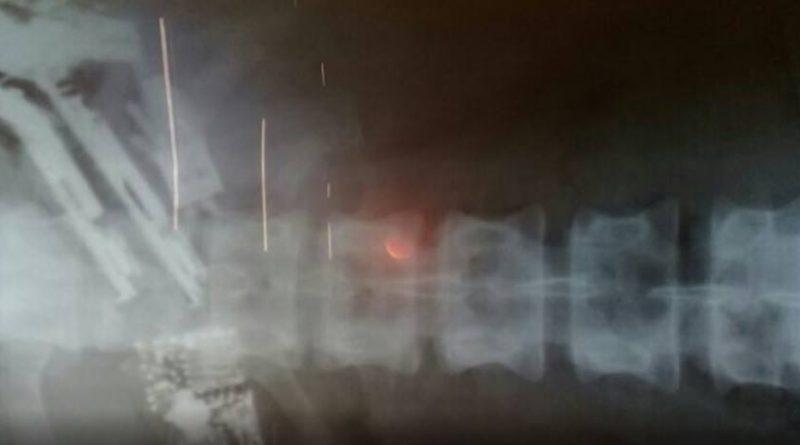 Preso é internado em estado grave após engolir cinco celulares